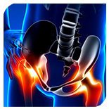 Canberra-Spine-Centre-Hip-Pain-Chiropractor-Canberra