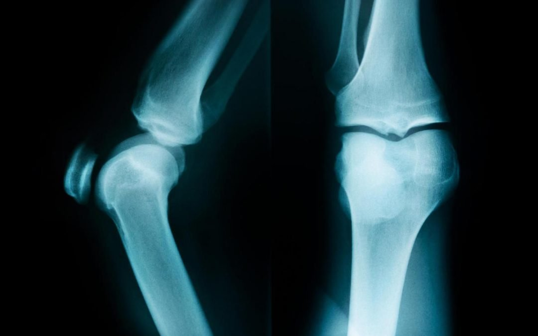 Do I need a Hip or Knee Replacement?