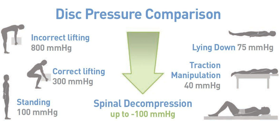 spinal decompression therapy - disc pressure
